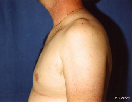 Virginia Beach Gynecomastia 1227 -  After Image 2