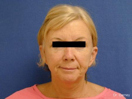 Virginia Beach Facelift 1262 - Before Image