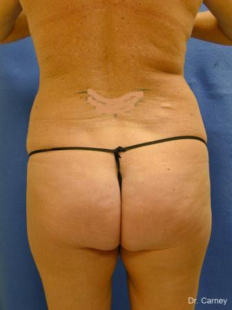 Virginia Beach Liposuction 1279 - Before Image 4