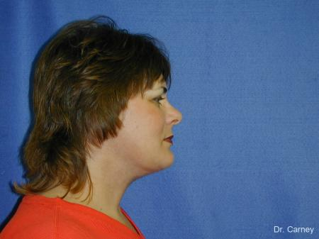 Virginia Beach Neck Lift 1269 - After Image