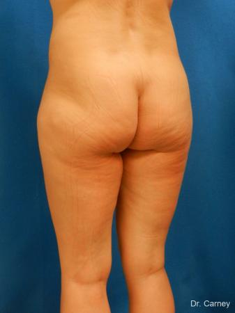 Brazilian Butt Lift: Patient 7 - Before Image 4