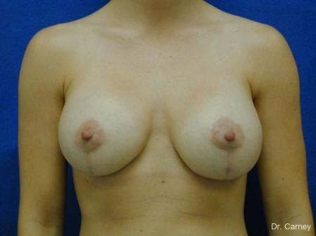 Virginia Beach Combo Procedures Breast 1099 - After Image