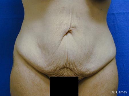 Virginia Beach Tummy Tuck 1249 - Before Image 2