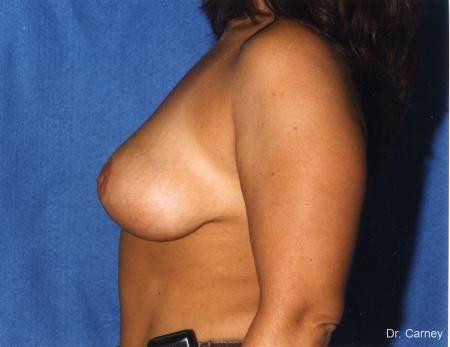 Virginia Beach Breast Lift 1187 -  After Image 2