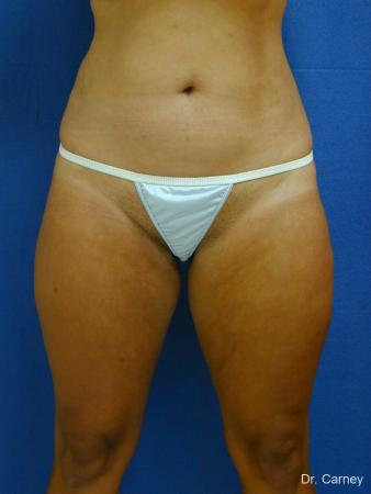 Virginia Beach Liposuction 1284 -  After Image 1