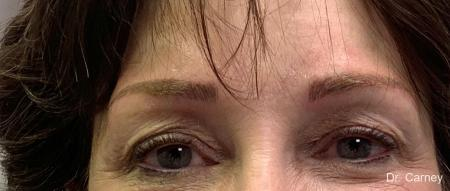 Microblading: Patient 3 - After Image 1