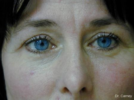 Virginia Beach Eyelid Lift 1139 - After Image
