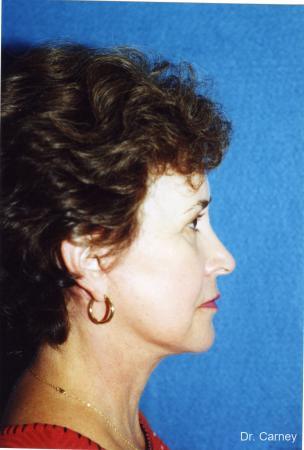 Virginia Beach Laser Skin Resurfacing - Face 1259 -  After Image 2
