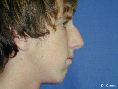 Virginia Beach Rhinoplasty 1219 - Before Image 4