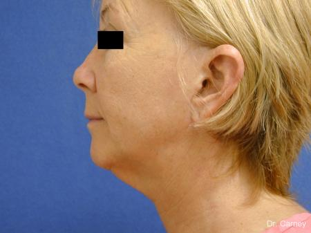 Virginia Beach Facelift 1262 - Before and After Image 5