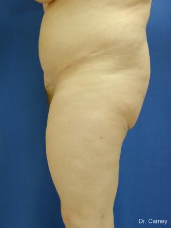 Virginia Beach Tummy Tuck 1250 -  After Image 2