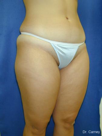 Virginia Beach Liposuction 1285 - Before Image 1
