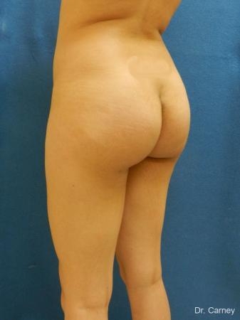 Virginia Beach Brazilian Butt Lift 1221 -  After Image 5