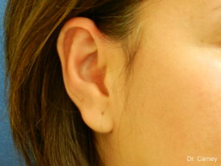 Virginia Beach Otoplasty Earlobe Repair 1225 - After Image