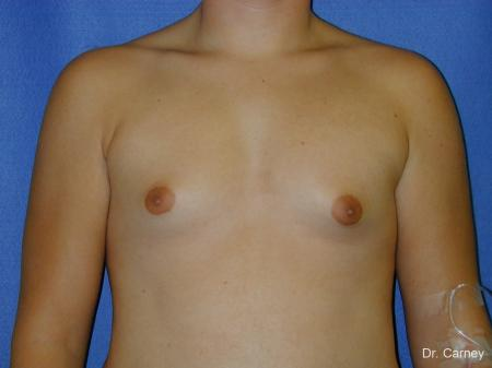 Virginia Beach Gynecomastia - Before Image 1