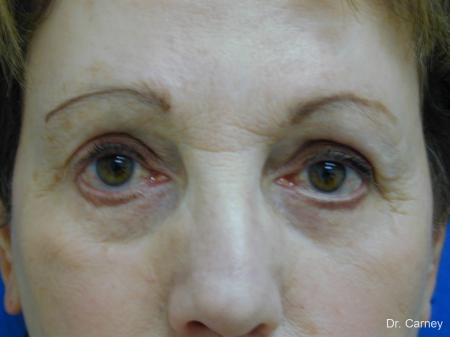 Virginia Beach Eyelid Lift 1128 - Before Image