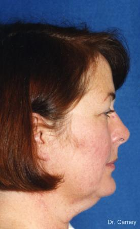 Virginia Beach Laser Skin Resurfacing - Face - Before and After Image 3