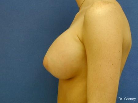 Virginia Beach Breast Augmentation 1089 -  After Image 1
