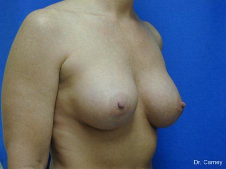 Virginia Beach Breast Augmentation 1214 -  After Image 2