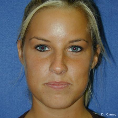 Virginia Beach Rhinoplasty 1218 - Before and After Image 5