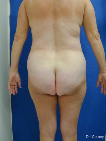 Virginia Beach Liposuction 1213 - Before Image 4