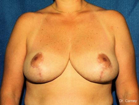 Virginia Beach Breast Reduction 1229 - After Image
