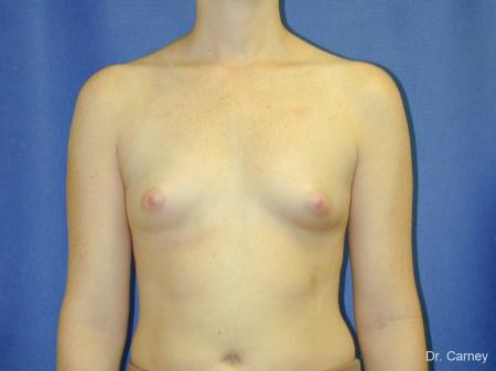 Virginia Beach Breast Augmentation 1090 - Before and After Image 3