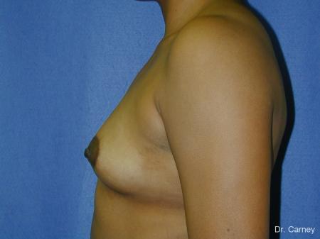 Virginia Beach Breast Augmentation 1091 - Before Image 2