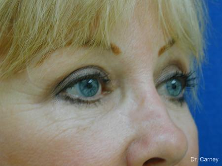 Virginia Beach Brow Lift 1266 -  After Image 2