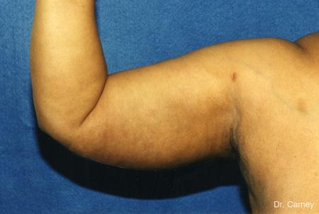 Virginia Beach Brachioplasty 1142 - After Image