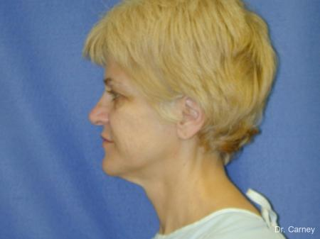 Virginia Beach Facelift 1346 - Before Image 4