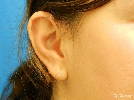 Virginia Beach Otoplasty Earlobe Repair 1225 - Before Image
