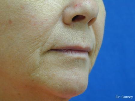 Virginia Beach Laser Skin Resurfacing Face 1263 - Before Image 3