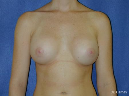 Virginia Beach Breast Augmentation 1090 -  After Image 3
