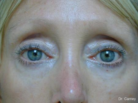 Virginia Beach Eyelid Lift 1079 - After Image