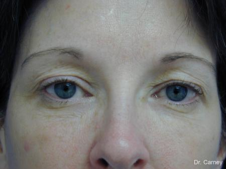 Virginia Beach Brow Lift 1217 - Before Image 2