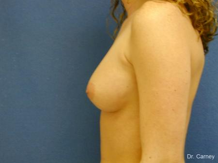 Virginia Beach Breast Augmentation 1089 - Before Image 1