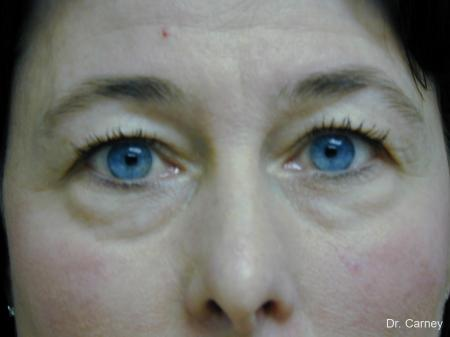 Virginia Beach Eyelid Lift 1139 - Before Image 1
