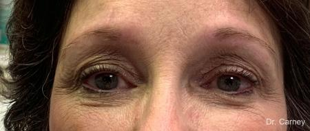 Microblading: Patient 3 - Before Image 1