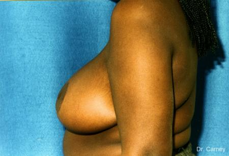 Virginia Beach Breast Reduction 1233 -  After Image 2