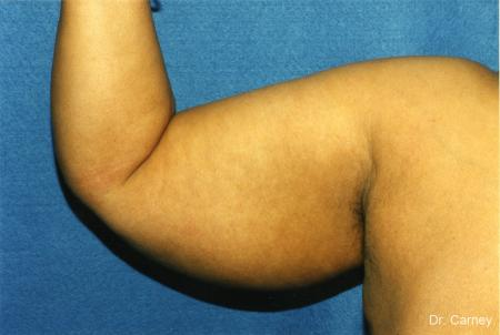 Virginia Beach Brachioplasty 1142 - Before Image