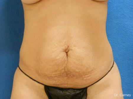 Abdominoplasty: Patient 2 - Before Image 3