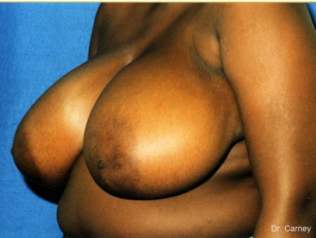 Virginia Beach Breast Reduction 1233 - Before Image