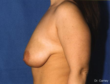 Virginia Beach Breast Lift 1187 - Before and After Image 2
