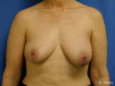 Virginia Beach Breast Lift 1185 - Before Image 1