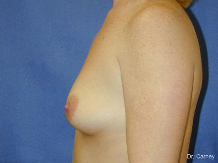 Virginia Beach Combo Procedures Breast 1098 - Before Image