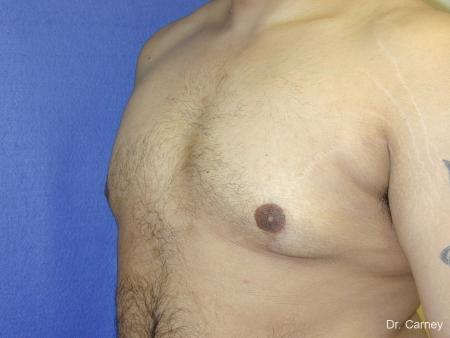 Virginia Beach Gynecomastia 1255 -  After Image 5