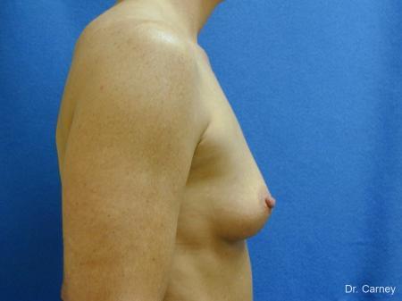 Virginia Beach Breast Augmentation 1214 - Before Image 3