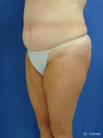 Virginia Beach Liposuction 1213 - Before Image 1