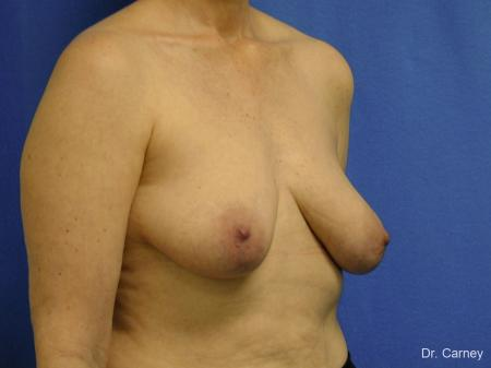 Virginia Beach Breast Lift 1185 - Before Image 2